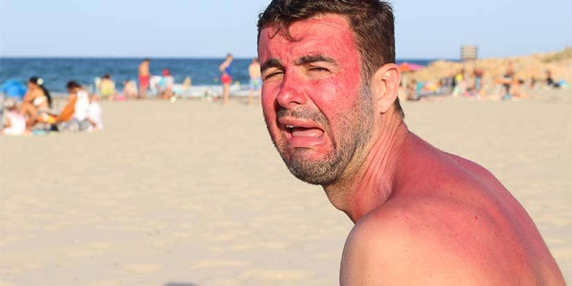 A sunburned man whines while sitting on the beach.
